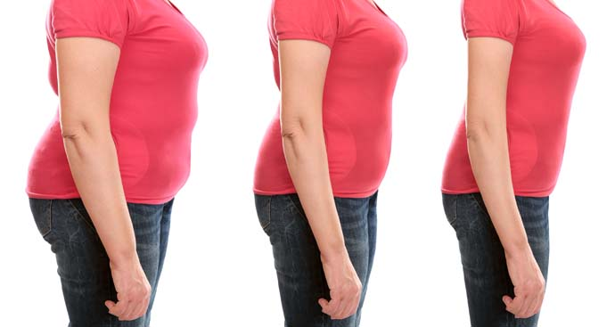 series of three photos showing a profile view of a woman in three phases of weight loss