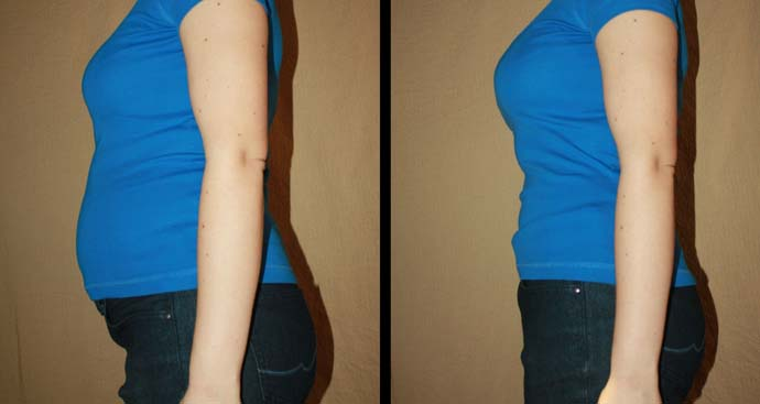 before and after photos from a weight loss patient